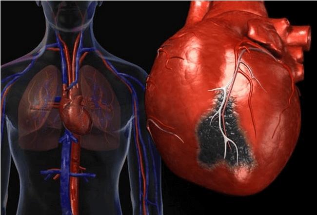 Аритмия сердца после инфаркта