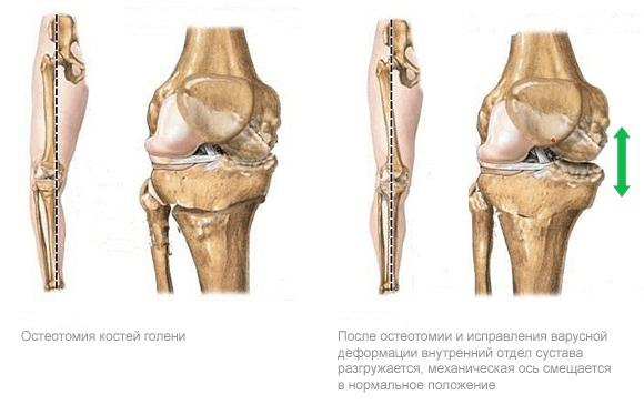 врожденная рекурвация коленных суставов